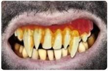 Dentiera denti mostro zombie pasta modellabile alta qualita halloween carnevale