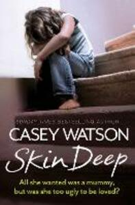 Skin Deep: All She Wanted Was a Mummy, but Was She Too Ugly to be Loved? - Casey Watson - cover