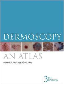Dermoscopy: An Atlas - Scott W. Menzies,Kerry A. Crotty,Christian Ingvar - cover