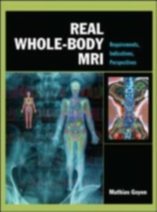 Ebook in inglese Real Whole-Body MRI: Requirements, Indications, Perspectives Goyen, Mathias