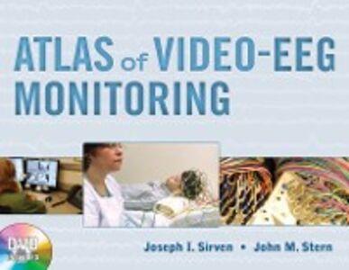 Ebook in inglese Atlas of Video-EEG Monitoring Sirven, Joseph , Stern, John
