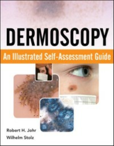 Ebook in inglese Dermoscopy: An Illustrated Self-Assessment Guide Johr, Robert , Stolz, Wilhelm