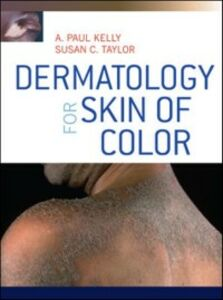 Ebook in inglese Dermatology for Skin of Color Kelly, A. Paul , Taylor, Susan