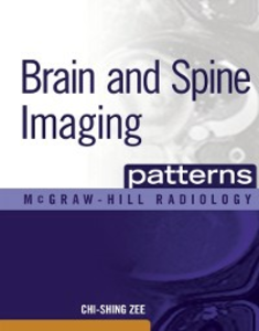 Ebook in inglese Brain and Spine Imaging Patterns Zee, Chi-Shing