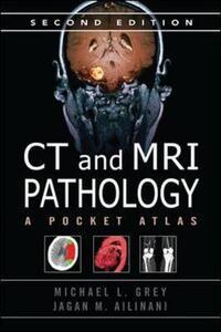 CT & MRI Pathology: A Pocket Atlas, Second Edition - Michael L. Grey,Jagan Mohan Ailinani - cover