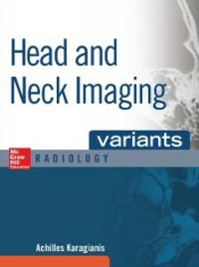 Ebook in inglese Head and Neck Imaging Variants Karagianis, Achilles