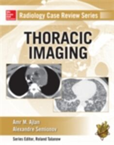 Foto Cover di Radiology Case Review Series: Thoracic Imaging, Ebook inglese di Alexander Semionov,Amr M. Ajlan, edito da McGraw-Hill Education