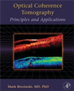 Ebook in inglese Optical Coherence Tomography Brezinski, Mark E.