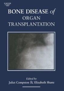 Foto Cover di Bone Disease of Organ Transplantation, Ebook inglese di  edito da Elsevier Science