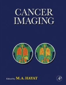 Ebook in inglese Cancer Imaging Hayat, M. A.