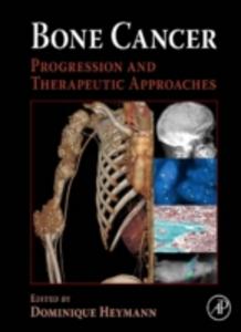 Ebook in inglese Bone Cancer -, -