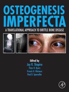 Foto Cover di Osteogenesis Imperfecta, Ebook inglese di AA.VV edito da Elsevier Science