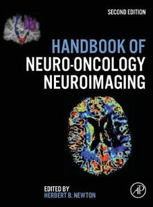 Handbook of Neuro-Oncology Neuroimaging - cover