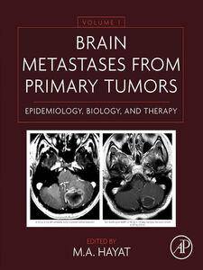 Foto Cover di Brain Metastases from Primary Tumors Volume 1, Ebook inglese di M. A. Hayat, edito da Elsevier Science