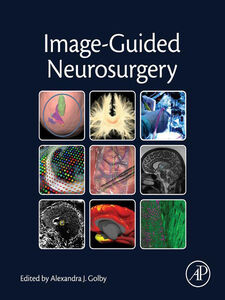 Foto Cover di Image-Guided Neurosurgery, Ebook inglese di Alexandra J. Golby, edito da Elsevier Science