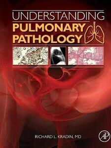 Understanding Pulmonary Pathology: Applying Pathological Findings in Therapeutic Decision Making - Richard L. Kradin - cover
