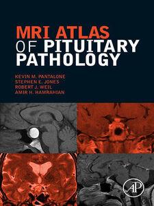 Foto Cover di MRI Atlas of Pituitary Pathology, Ebook inglese di AA.VV edito da Elsevier Science