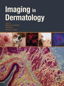 Foto Cover di Imaging in Dermatology, Ebook inglese di AA.VV edito da Elsevier Science