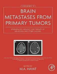 Brain Metastases from Primary Tumors, Volume 3: Epidemiology, Biology, and Therapy of Melanoma and Other Cancers - cover