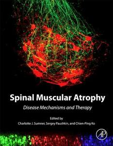 Spinal Muscular Atrophy: Disease Mechanisms and Therapy - cover