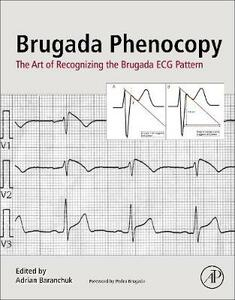 Brugada Phenocopy: The Art of Recognizing the Brugada ECG Pattern - cover