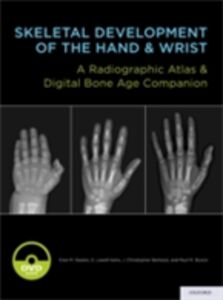 Ebook in inglese Skeletal Development of the Hand and Wrist: A Radiographic Atlas and Digital Bone Age Companion Bertozzi, J. Christoper , Bunc, unch , Gaskin, Cree M. , Kahn, S. Lowell