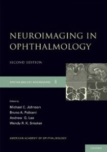 Ebook in inglese Neuroimaging in Ophthalmology Johnson, Michael C. , Lee, Andrew G. , Policeni, Bruno , Smoker