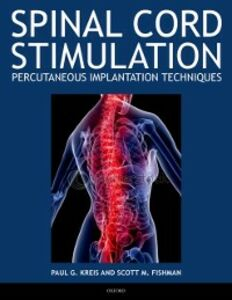 Ebook in inglese Spinal Cord Stimulation Implantation: Percutaneous Implantation Techniques Fishman, Scott , Kreis, Paul