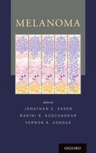 Foto Cover di Melanoma, Ebook inglese di  edito da Oxford University Press