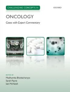 Foto Cover di Challenging Concepts in Oncology, Ebook inglese di  edito da OUP Oxford