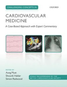 Ebook in inglese Challenging Concepts in Cardiovascular Medicine: A Case-Based Approach with Expert Commentary -, -