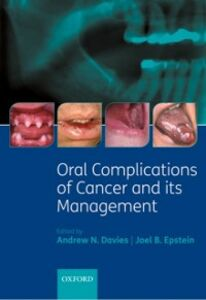 Ebook in inglese Oral Complications of Cancer and its Management