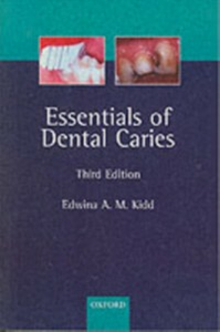 Ebook in inglese Essentials of Dental Caries: The Disease and Its Management, 3rd ed. -, -