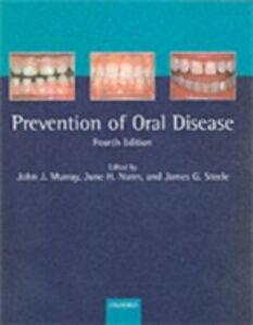 Ebook in inglese Prevention of Oral Disease