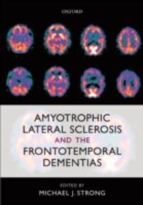 Foto Cover di Amyotrophic Lateral Sclerosis and the Frontotemporal Dementias, Ebook inglese di  edito da OUP Oxford