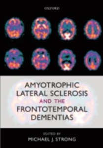 Ebook in inglese Amyotrophic Lateral Sclerosis and the Frontotemporal Dementias -, -