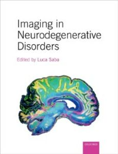 Ebook in inglese Imaging in Neurodegenerative Disorders -, -