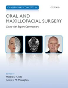 Foto Cover di Challenging Concepts in Oral and Maxillofacial Surgery: Cases with Expert Commentary, Ebook inglese di  edito da OUP Oxford