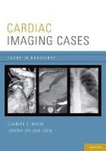 Cardiac Imaging Cases - Charles S. White,Joseph Chen - cover