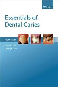 Essentials of Dental Caries - Edwina A. M. Kidd,Ole Fejerskov - cover