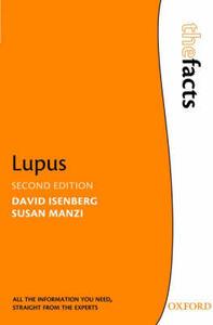 Lupus - David A. Isenberg,Susan Manzi - cover