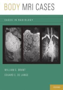 Foto Cover di Body MRI Cases, Ebook inglese di  edito da Oxford University Press