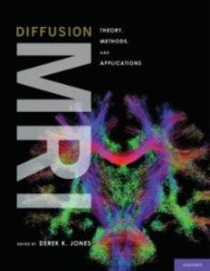 Ebook in inglese Diffusion MRI Derek K Jones, Derek K.