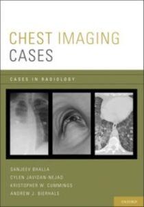 Foto Cover di Chest Imaging Cases, Ebook inglese di AA.VV edito da Oxford University Press