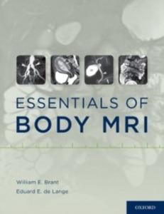 Ebook in inglese Essentials of Body MRI -, -
