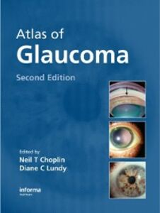 Ebook in inglese Atlas of Glaucoma, Second Edition