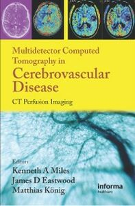Ebook in inglese Multidetector Computed Tomography in Cerebrovascular Disease -, -
