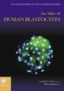 Ebook in inglese Atlas of Human Blastocysts Veeck, Lucinda L. , Zaninovic, Nikica