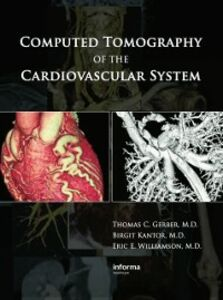 Ebook in inglese Computed Tomography of the Cardiovascular System -, -