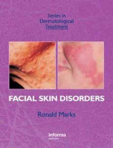 Foto Cover di Facial Skin Disorders, Ebook inglese di Ronald Marks, edito da CRC Press